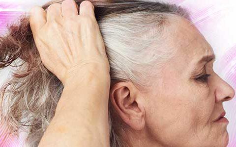 queda de cabelo na menopausa