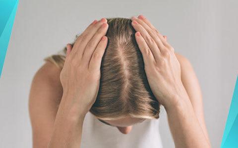 mulher com queda de cabelo feminina
