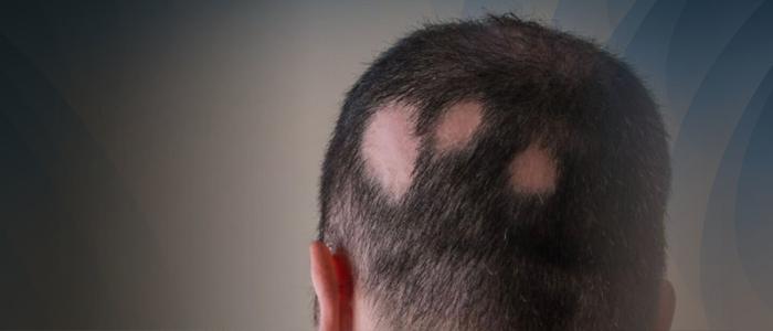 Alopecia areata em homem, um tipo de alopecia rara