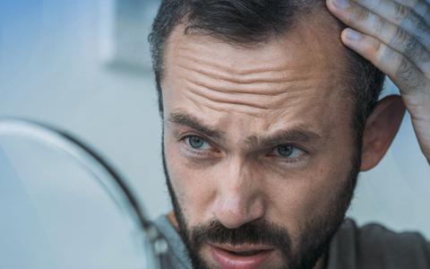 Homem percebendo as entradas e a queda de cabelo