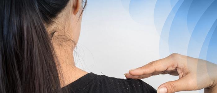 Parar queda de cabelo urgente: trate a caspa