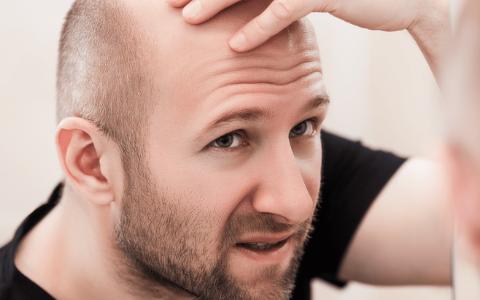 diferença entre queda de cabelo e calvície