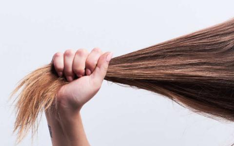alopecia de tração